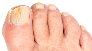 Kalknagel symptomen Mycosan