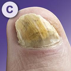 Mycosan nagel