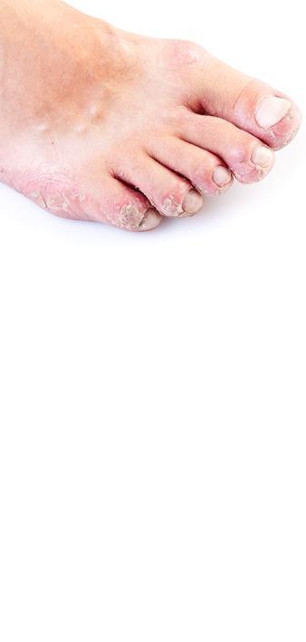 Voetschimmel gebruik Mycosan Protect