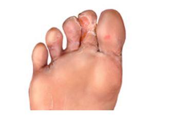 Voetschimmel Symptomen Mycosan